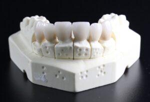 Los adultos tienen 32 dientes