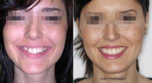 La paciente antes y después del uso de Invisalign