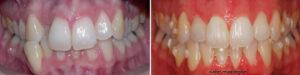 Los dientes de la paciente antes y después del uso de Invisalign