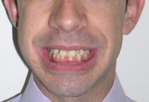 Sonrisa del paciente antes de someterse a la técnica de ortodoncia invisible Invisalign