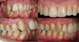 Antes y después de los dientes del paciente tras el tratamiento con Invisalign