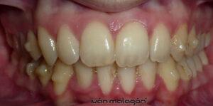 Los ataches están fabricados en una resina de color similar al de los dientes