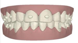 A través del software Clincheck es posible que el odontólogo, experto en Invisalign, determine dónde colocar los ataches