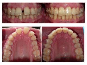 Los cambios en la dentadura de la paciente antes y después del uso de Invisalign