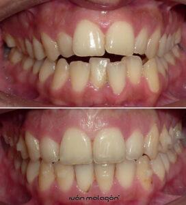 Cambios en los dientes de la pacientes y después del uso de la ortodoncia invisible Invisalign