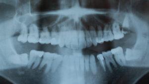 Radiografía en la que se pueden observar las muelas del juicio