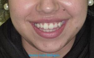 La sonrisa de la paciente antes de comenzar su tratamiento con la técnica de ortodoncia invisible Invisalign