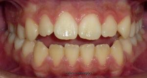 Aspecto de la dentadura de la paciente antes de someterse al tratamiento de ortodoncia invisible Invisalign