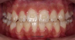 Aspecto de la dentadura de la paciente después de someterse al tratamiento de ortodoncia invisible Invisalign