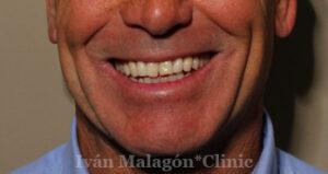 Sonrisa del paciente antes de someterse al tratamiento con Invisalign