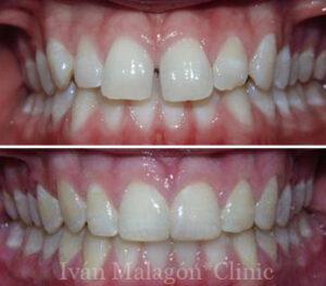 Las líneas medias han quedado alineadas gracias al uso de ortodoncia