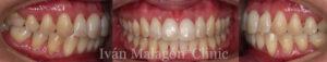 Dentadura de la paciente tras el correcto uso de la técnica de ortodoncia invisible Invisalign