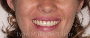Sonrisa de la paciente al finalizar por completo el tratamiento con Invisalign