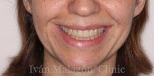 Sonrisa de la paciente después de utilizar Invisalign