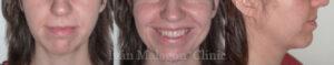 Sonrisa de la paciente antes de utilizar ortodoncia invisible Invisalign