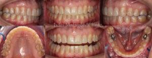 Dientes de la paciente tras someterse al tratamiento de ortodoncia invisible Invisalign