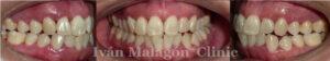 Fotografía de la dentadura de la paciente antes del tratamiento con Invisalign