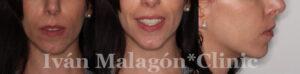Sonrisa de la paciente al finalizar el tratamiento con Invisalign