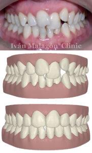 Mordida de la paciente antes de utilizar la ortodoncia invisible Invisaling