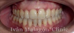 Imagen intraoral tras el tratamiento con Invisalign