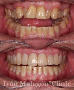Aspecto de la dentadura del paciente antes y después del tratamiento con Invisalign