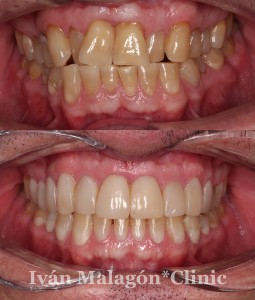 Imagen intraoral de la dentadura del paciente antes y después del tratamiento con invisalign