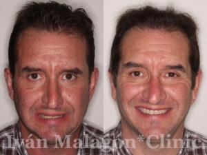 Antes y después del tratamiento de ortodoncia invisible Invisalign