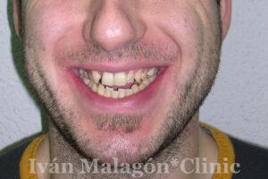 Sonrisa del paciente antes del tratamiento.