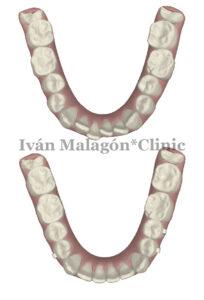 Simulación de la arcada inferior del paciente antes y después del tratamiento con la ortodoncia invisible Invisalign con Clincheck.