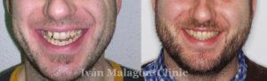 Cambio de la sonrisa del paciente antes y después del tratamiento con Invisalign.