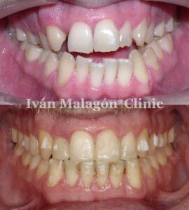 Aspecto frontal de los dientes del paciente antes y después del tratamiento con Invisalign.