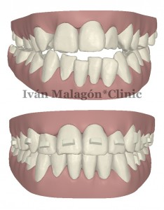 Simulación frontal de los dientes del paciente antes y después del tratamiento con Invisalign con Clincheck.