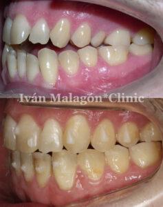 Aspecto lateral de los dientes del paciente antes y después del tratamiento con Invisalign.