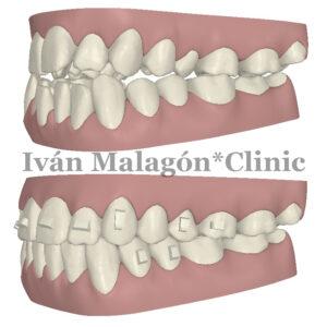 Simulación lateral de los dientes del paciente antes y después del tratamiento con Invisalign con Clincheck.