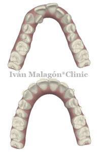 Simulación de la arcada superior del paciente antes y después del tratamiento con Invisalign con Clincheck.
