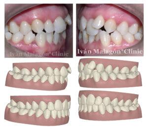 Aspecto de sus dientes antes del tratamiento y predicción mediante Clincheck
