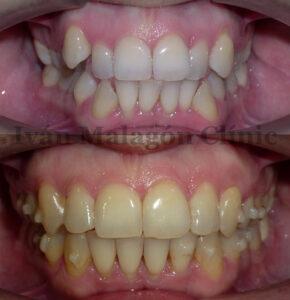 Imagen intraoral antes y después del uso de Invisalign