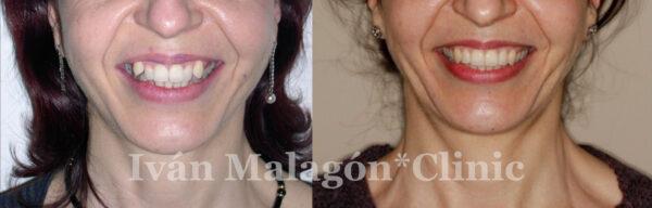 Comparativa de la sonrisa de la paciente antes y después de utilizar Invisalign