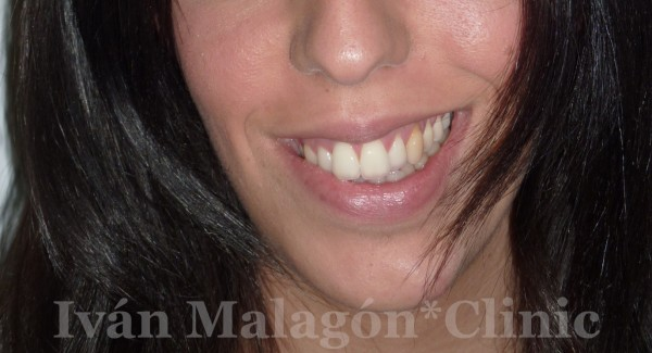 Sonrisa antes de usar Invisalign