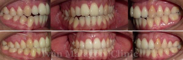 Imagen intraoral antes y después de utilizar Invisalign