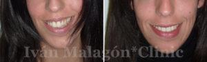 Sonrisa antes y después de utilizar Invisalign
