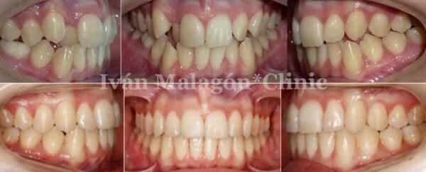 Imagen intraoral antes y después de utilizar Invisalign Teen